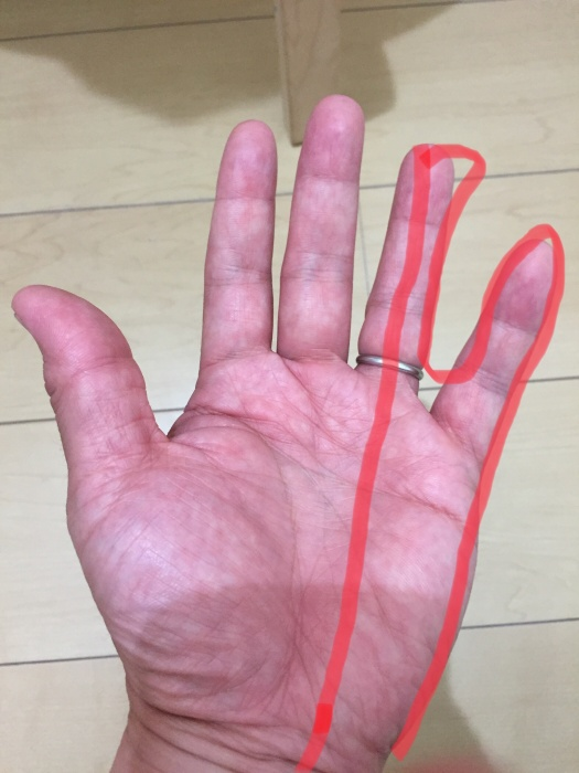 しびれ 小指